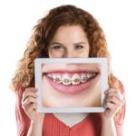 reduce braces pain