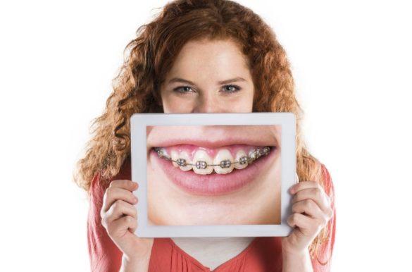 reduce braces pain