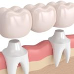 What to choose - Denture vs Bridge - Dr. Gaurav Malik - Max Dental Care