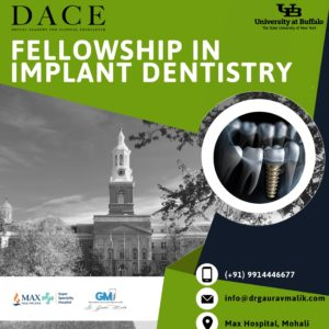 DACE - Fellowship in Implant Dentistry