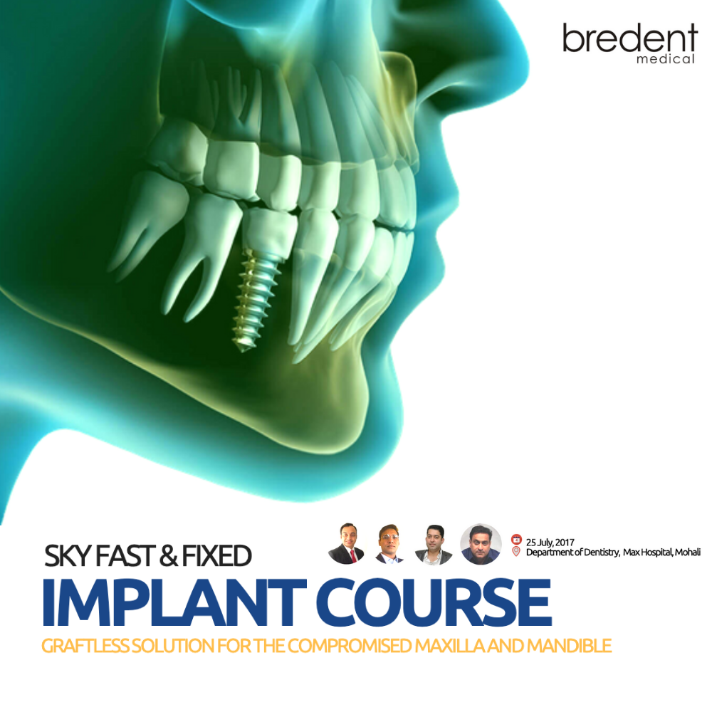Sky Fast & Fixed Implant Course