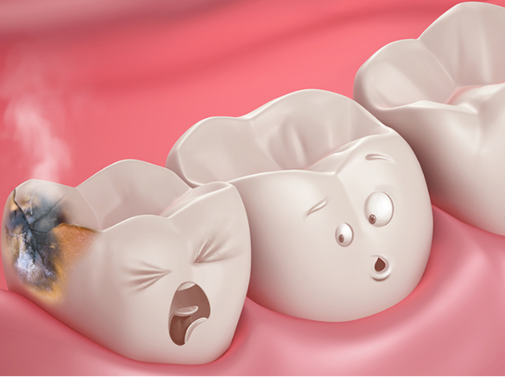 Dental Cavity - Germs or Worms